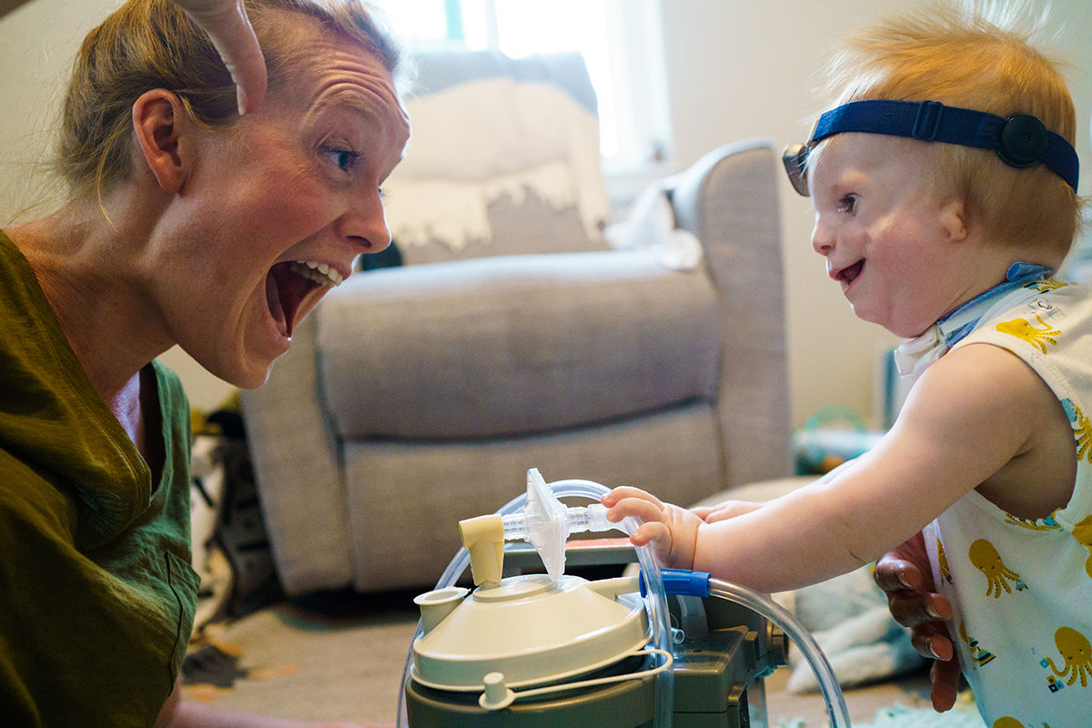 Photograph of young child with Treacher Collins syndrome and mother by documentary photographer Kirsten Lewis